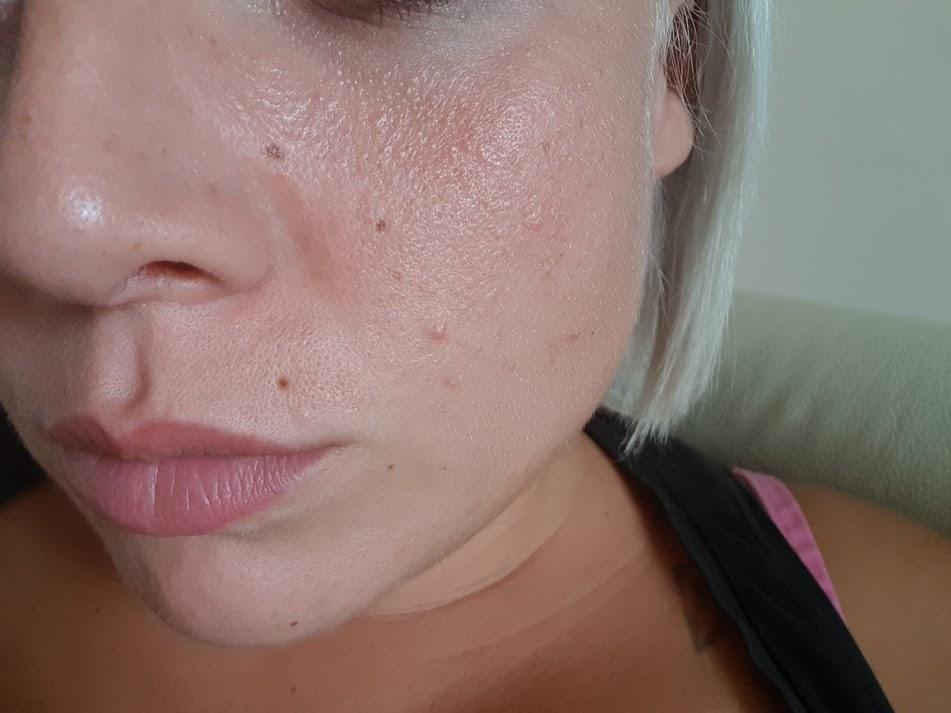 texture della pelle inizio trattamento