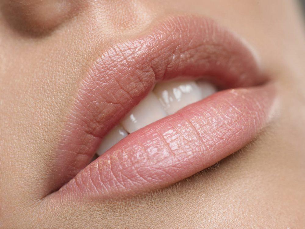 rimedi naturali labbra secche