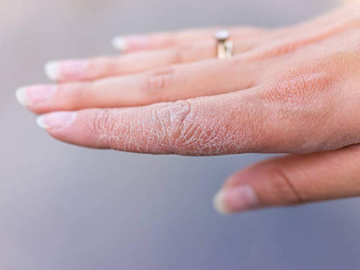 5 rimedi naturali per le mani secche e screpolate