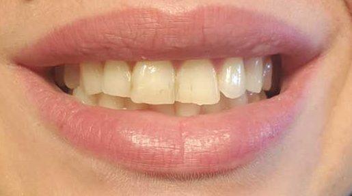 sbiancante naturale per denti