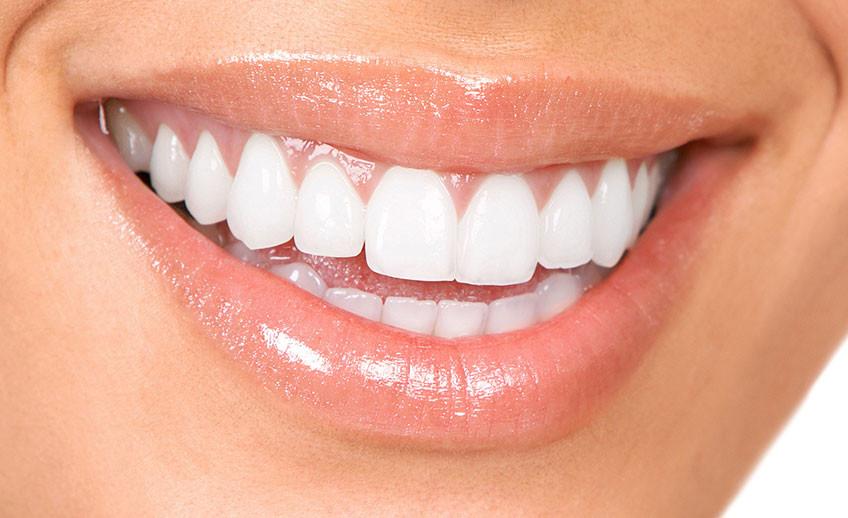 rimedi naturali per avere denti bianchi