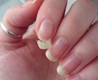 unghie deboli rimedi completamente naturali