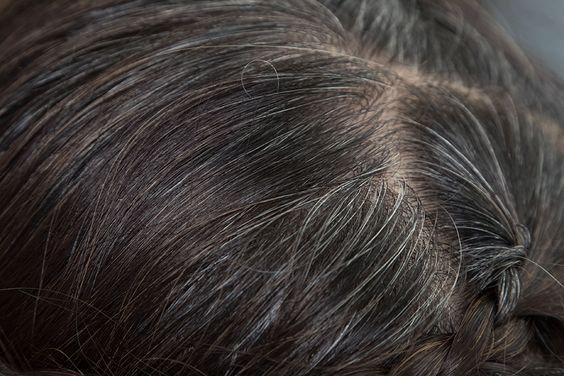 vìcipolla rimedi naturali capelli