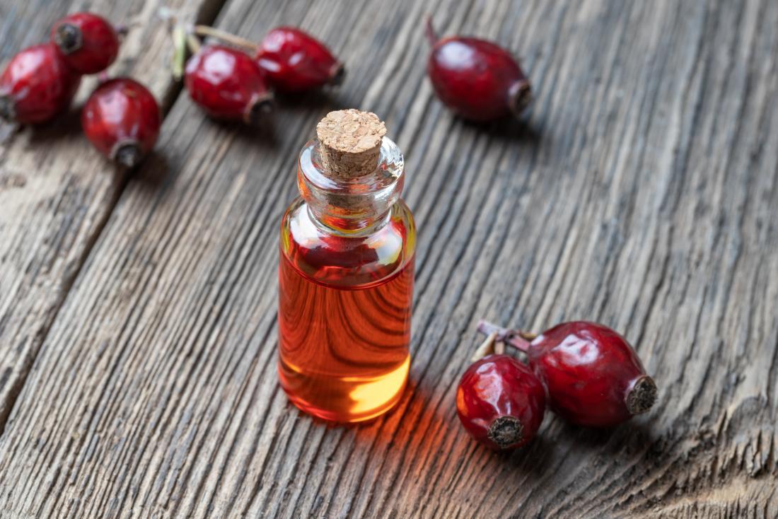 Olio essenziale di Rosa Mosqueta: proprietà cosmetiche, come usarlo e dove trovarlo
